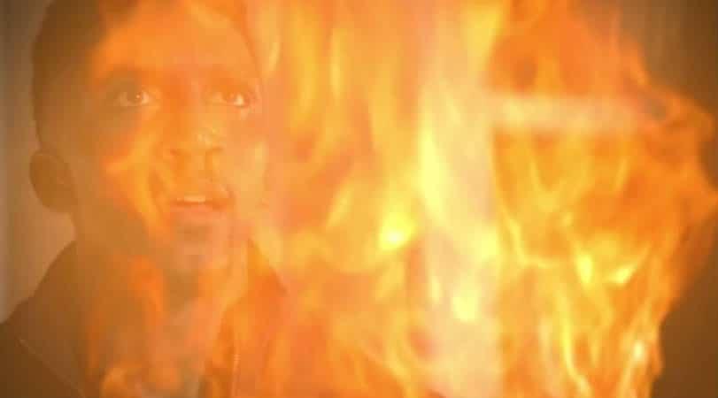 Finn burns