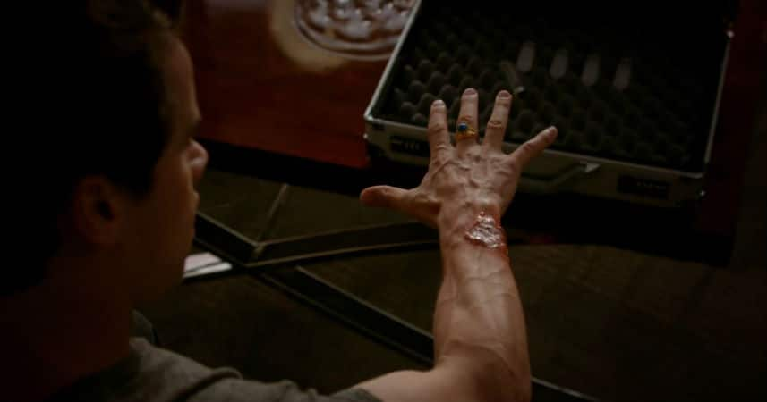 Lucien injects himself with a mysterious cure for a werewolf bite. Photo: CW.
